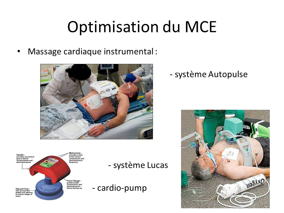 Optimisation du MCE