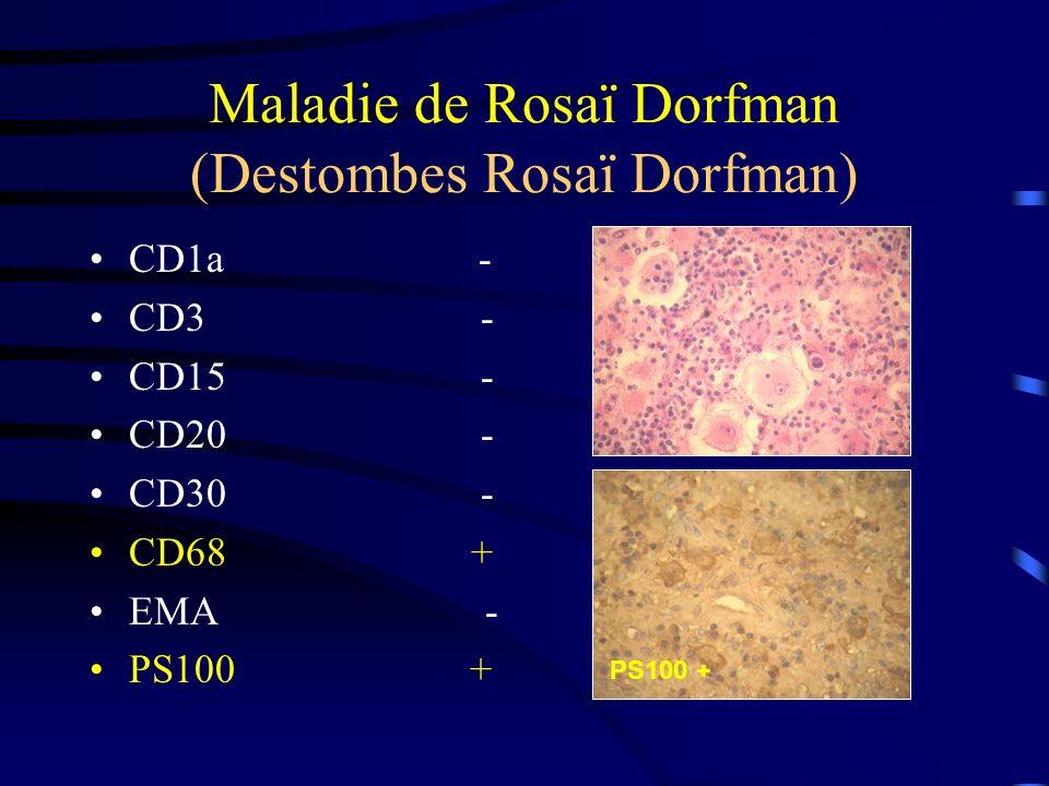 Maladie de Rosaï Dorfman (Destombes Rosaï Dorfman)
