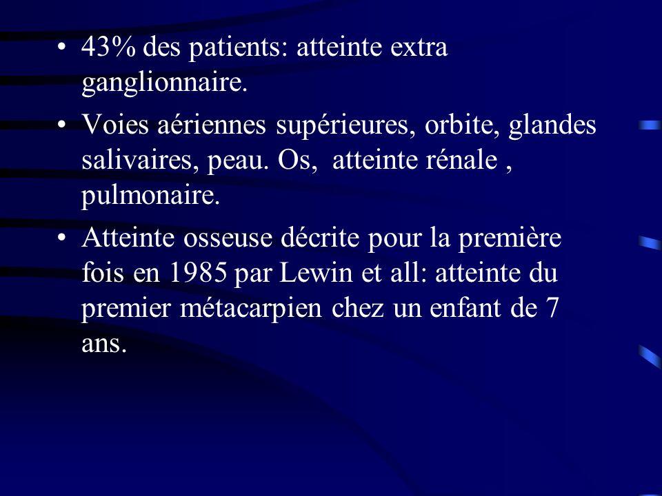 43% des patients: atteinte extra ganglionnaire.