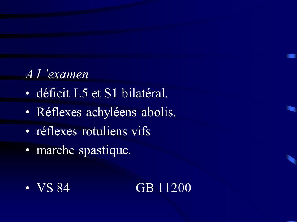 A l 'examen déficit L5 et S1 bilatéral. Réflexes achyléens abolis. réflexes rotuliens vifs. marche spastique.