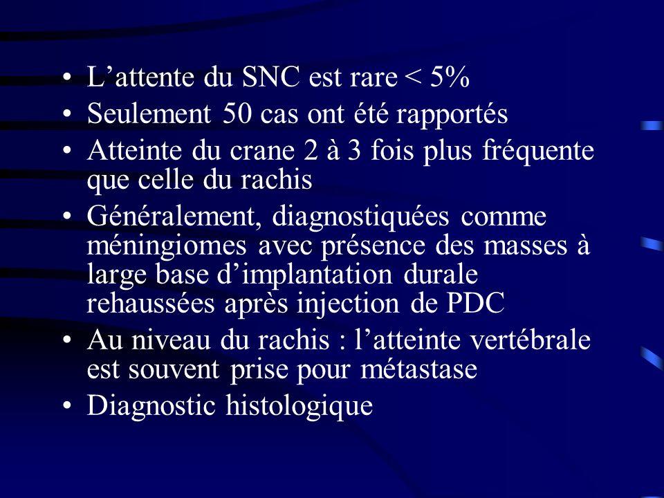 L'attente du SNC est rare < 5%