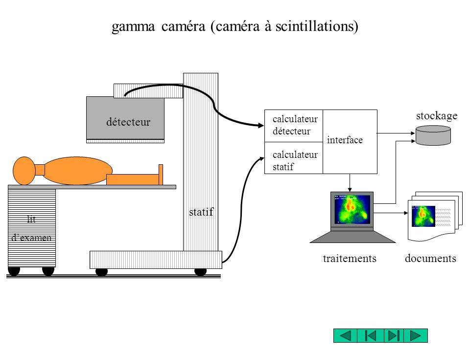 gamma caméra (caméra à scintillations)
