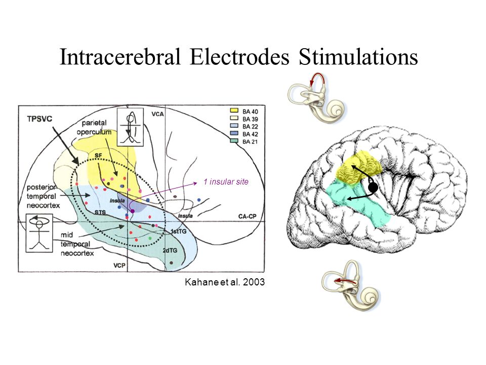 Intracerebral Electrodes Stimulations