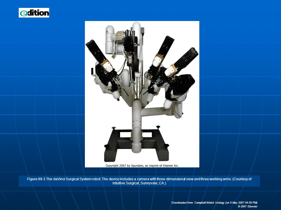 Figure 99-3 The daVinci Surgical System robot