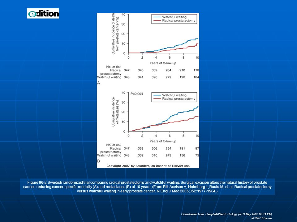 Figure 96-2 Swedish randomized trial comparing radical prostatectomy and watchful waiting. Surgical excision alters the natural history of prostate cancer, reducing cancer-specific mortality (A) and metastases (B) at 10 years. (From Bill-Axelson A, Holmberg L, Ruutu M, et al: Radical prostatectomy versus watchful waiting in early prostate cancer. N Engl J Med 2005;352:1977-1984.)