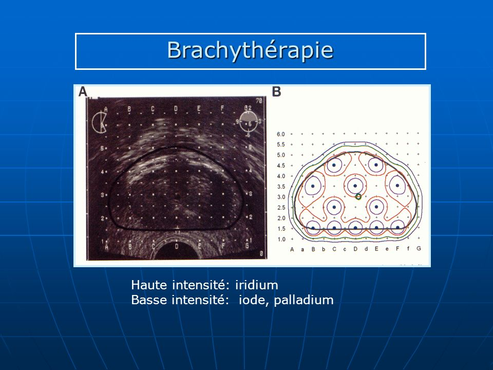 Brachythérapie Haute intensité: iridium