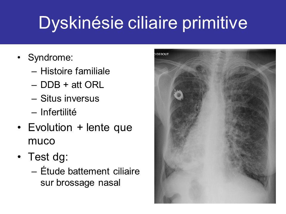 Dyskinésie ciliaire primitive