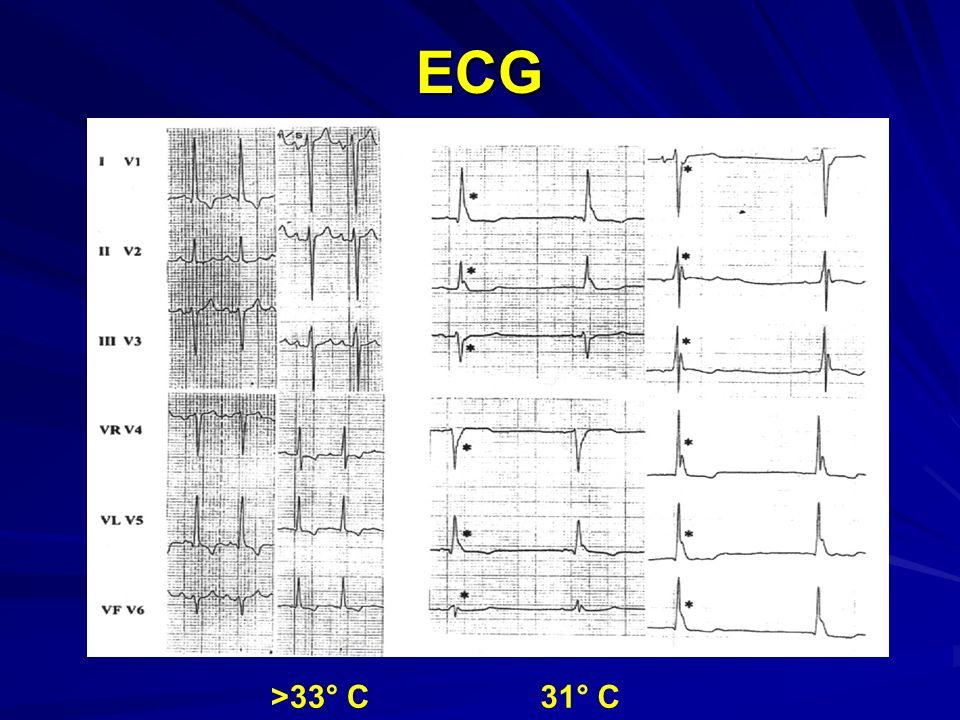 ECG >33° C 31° C