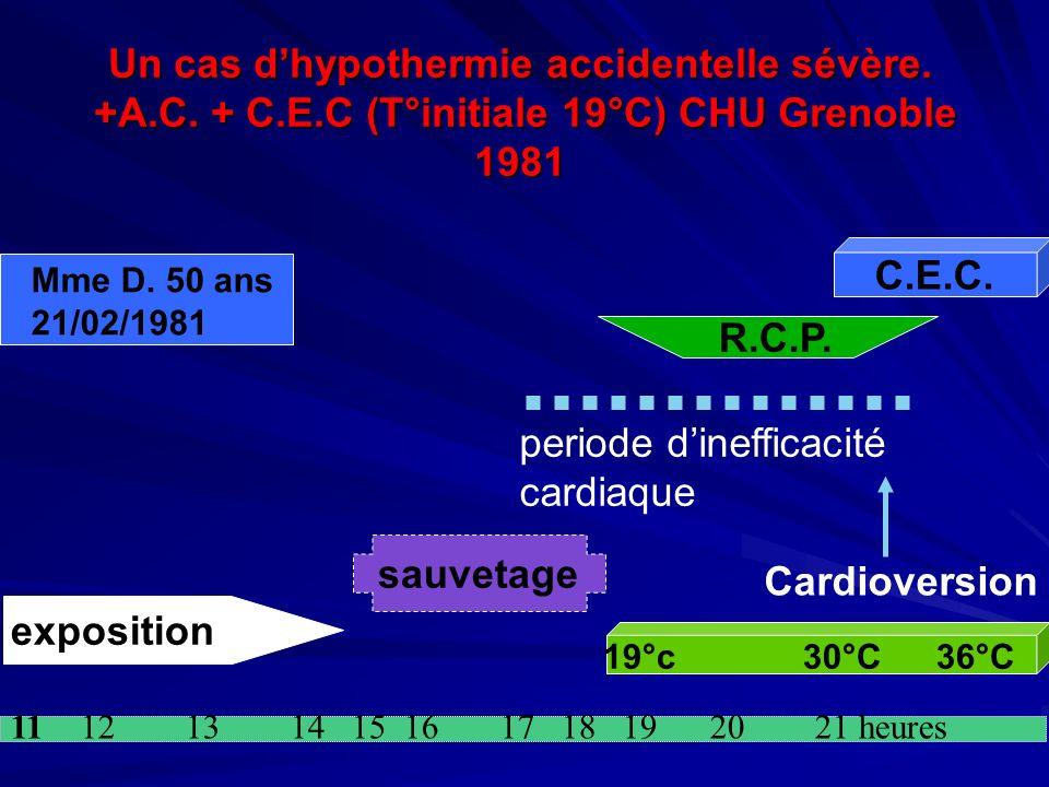 periode d'inefficacité cardiaque