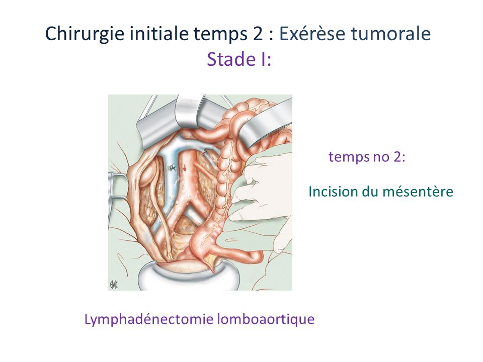 Chirurgie initiale temps 2 : Exérèse tumorale Stade I: