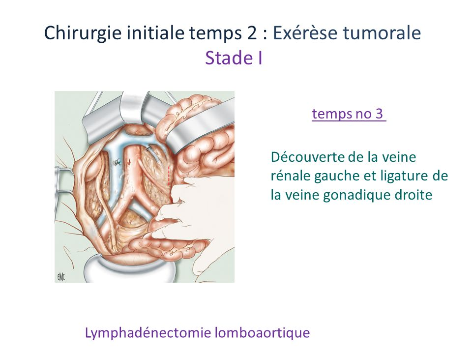 Chirurgie initiale temps 2 : Exérèse tumorale Stade I