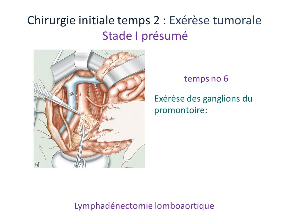 Lymphadénectomie lomboaortique
