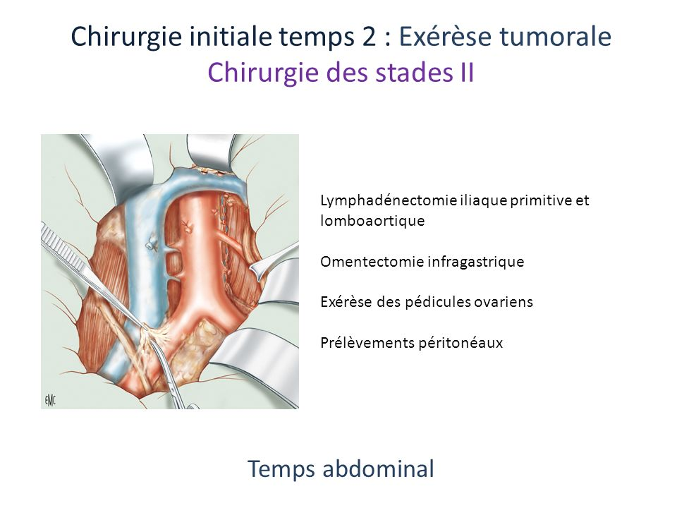 Chirurgie initiale temps 2 : Exérèse tumorale Chirurgie des stades II