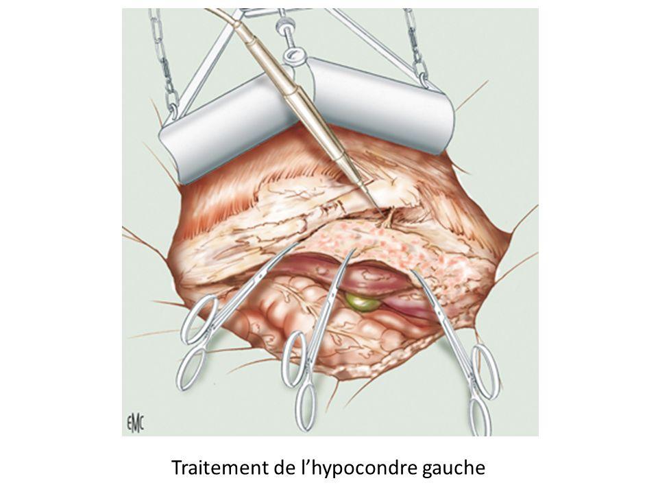Traitement de l'hypocondre gauche
