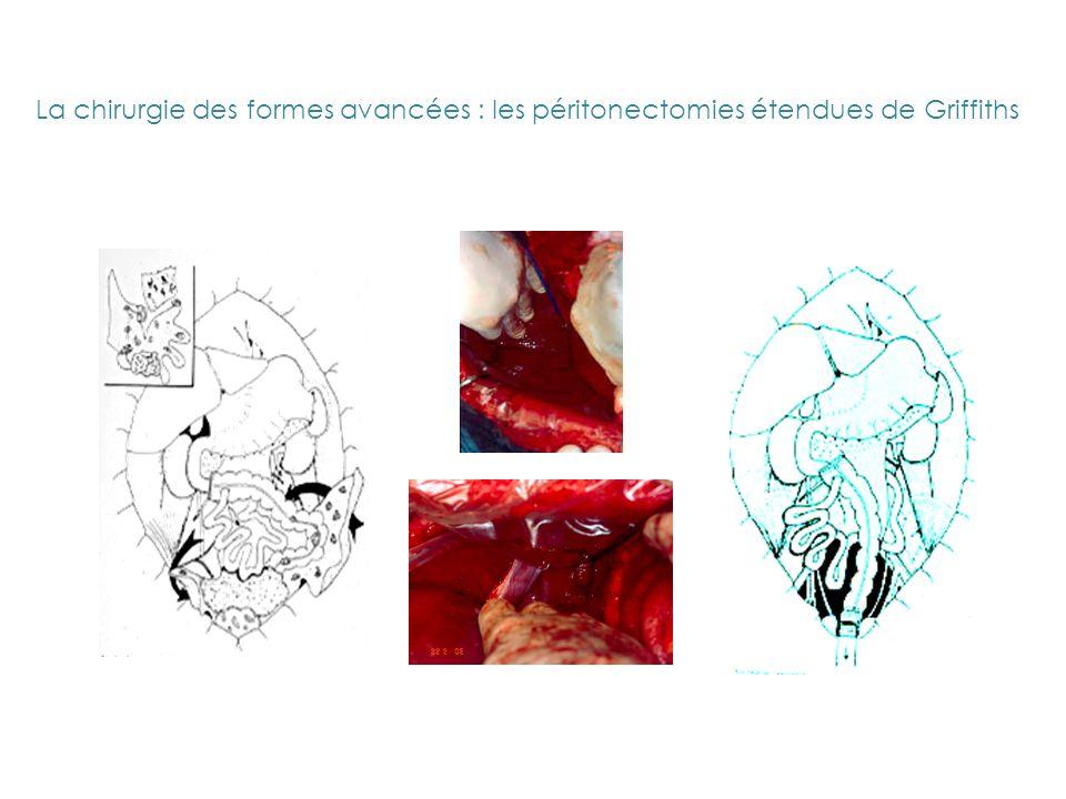 La chirurgie des formes avancées : les péritonectomies étendues de Griffiths