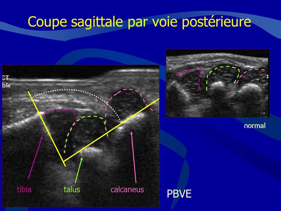 Coupe sagittale par voie postérieure