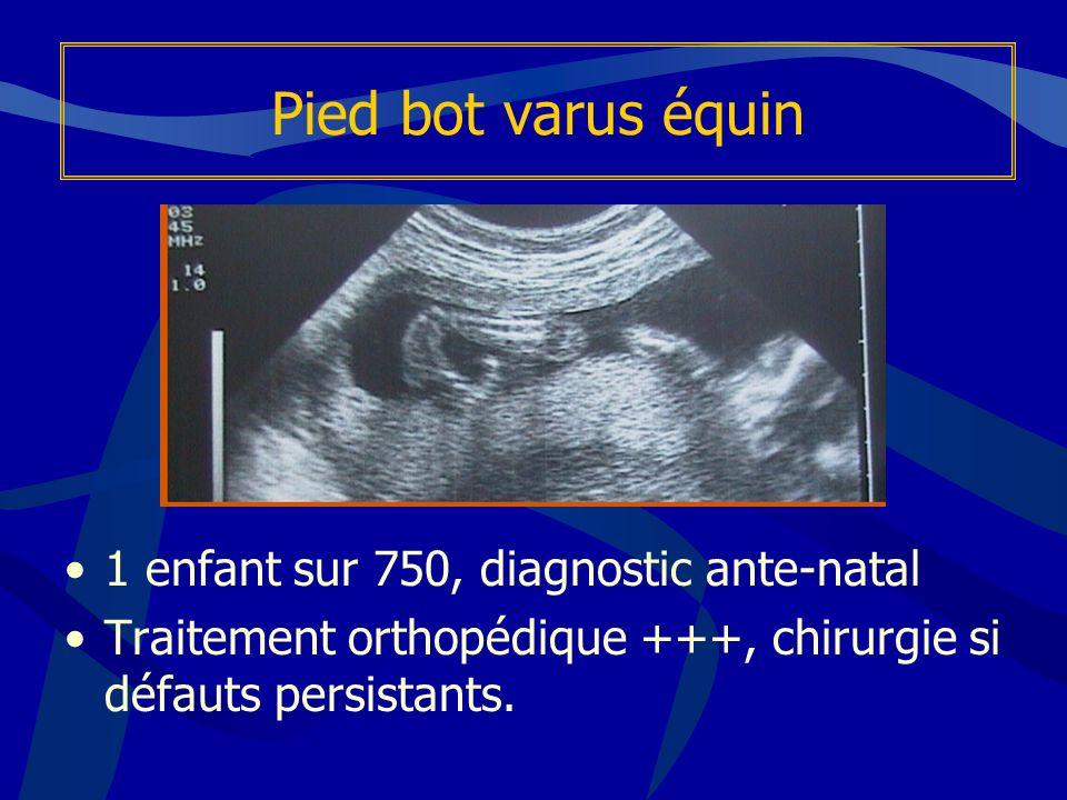 Pied bot varus équin 1 enfant sur 750, diagnostic ante-natal