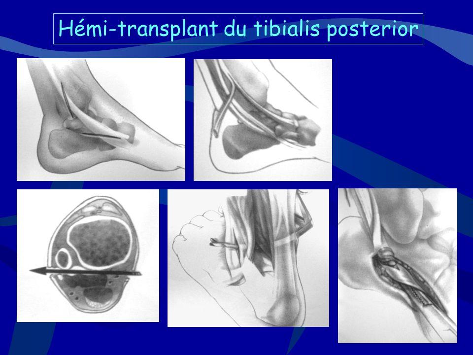 Hémi-transplant du tibialis posterior