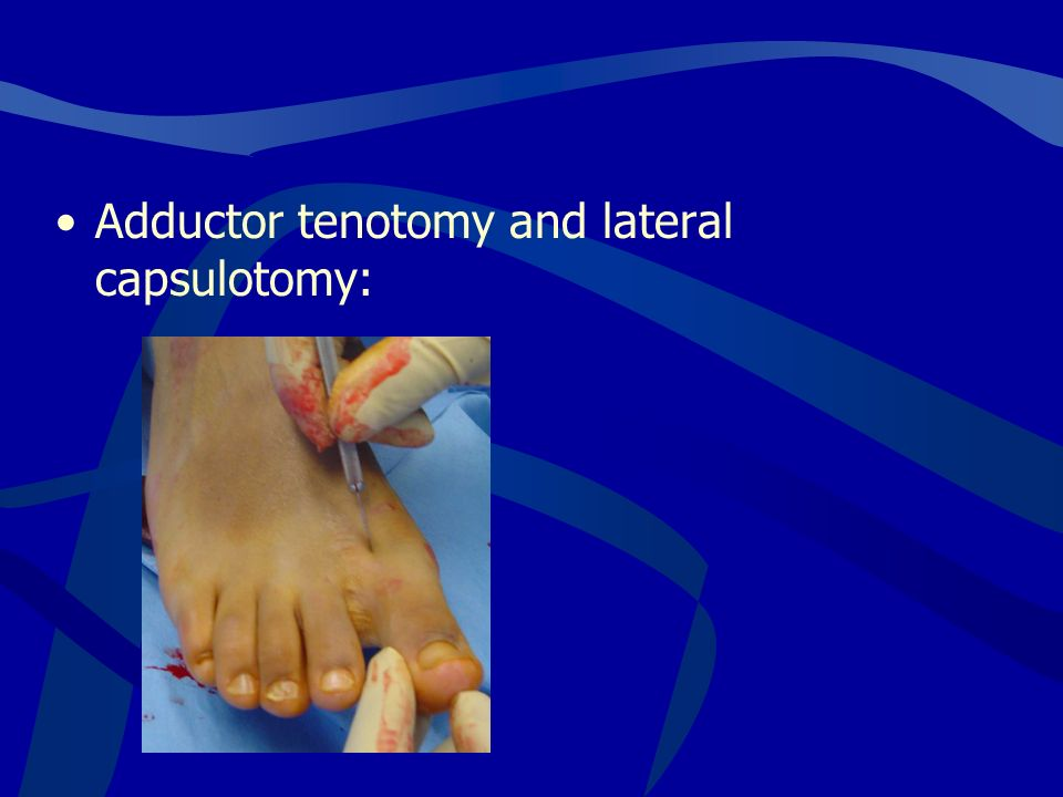 Adductor tenotomy and lateral capsulotomy: