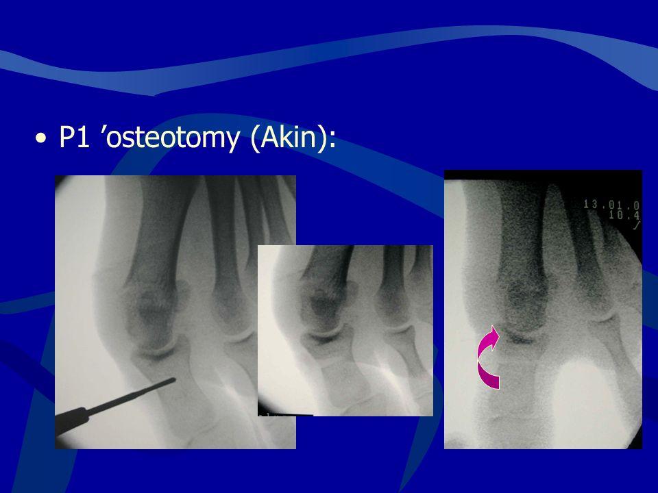 P1 'osteotomy (Akin):