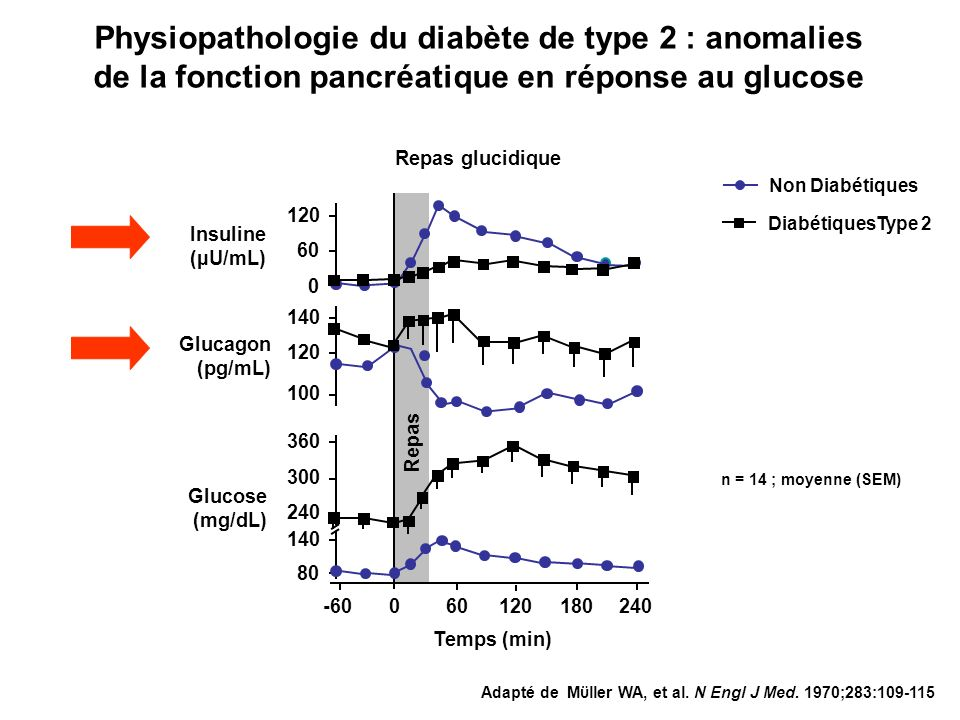 Physiopathologie du diabète de type 2 : anomalies de la fonction pancréatique en réponse au glucose