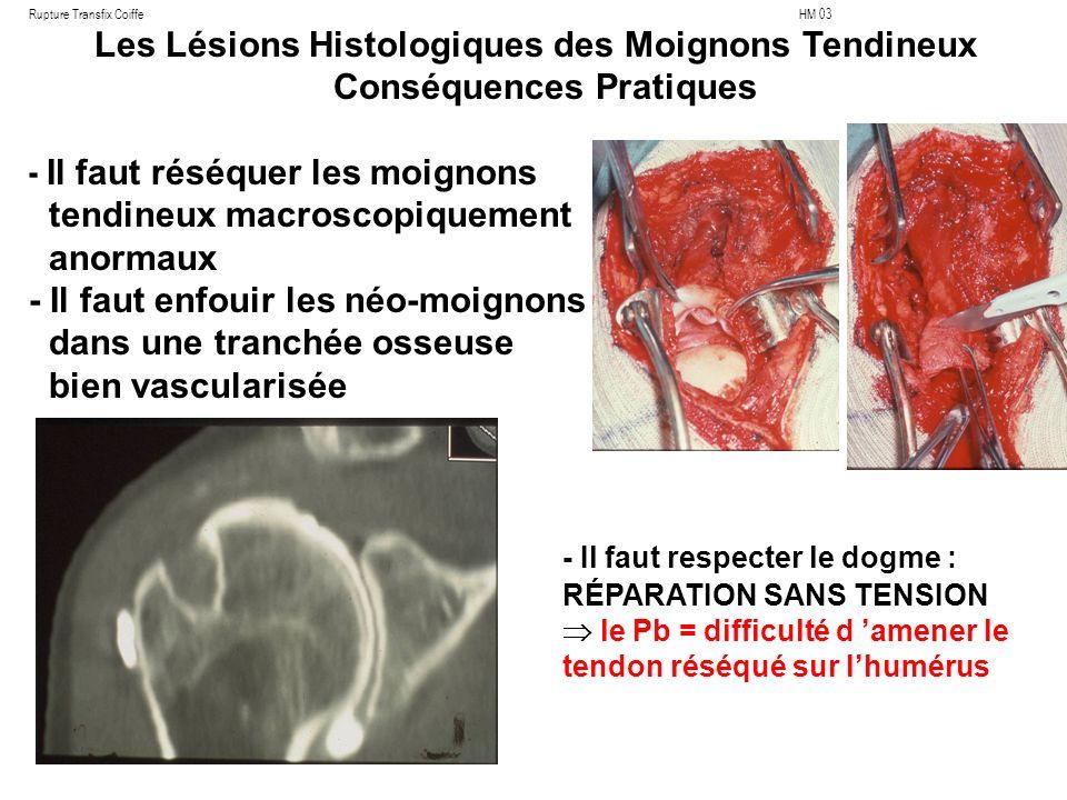 Les Lésions Histologiques des Moignons Tendineux