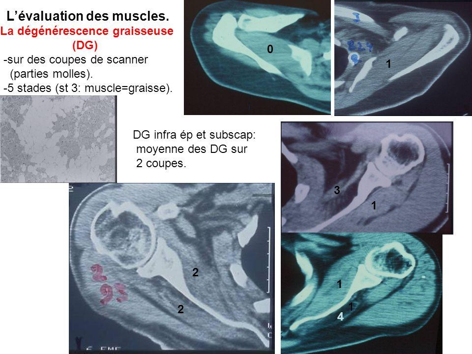 L'évaluation des muscles. La dégénérescence graisseuse (DG)