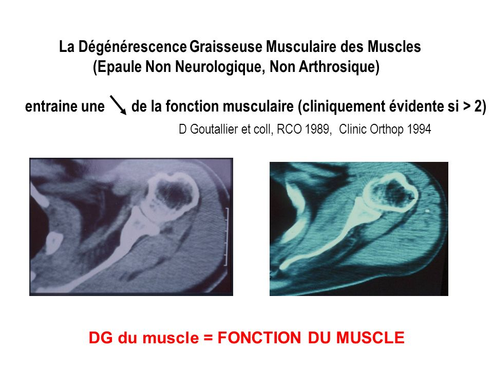 D Goutallier et coll, RCO 1989, Clinic Orthop 1994