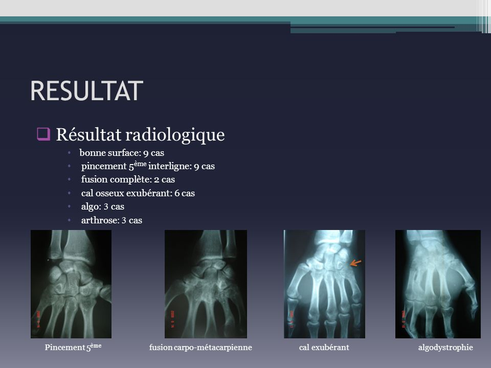 RESULTAT Résultat radiologique bonne surface: 9 cas