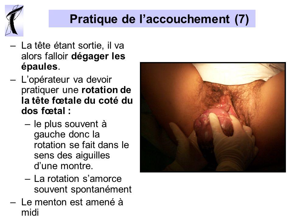 Pratique de l'accouchement (7)