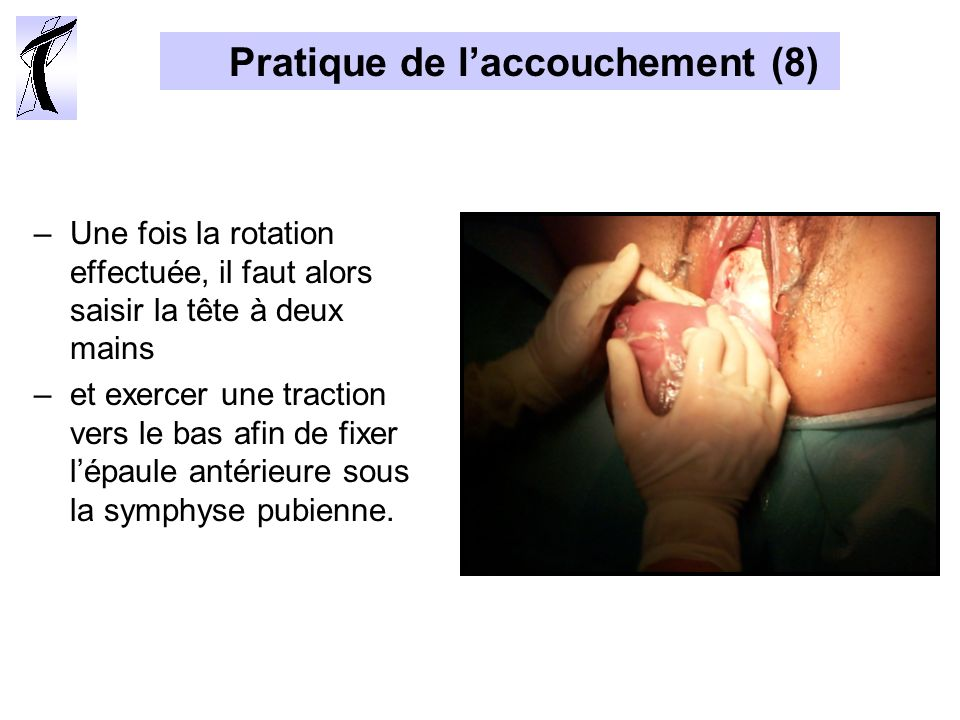 Pratique de l'accouchement (8)