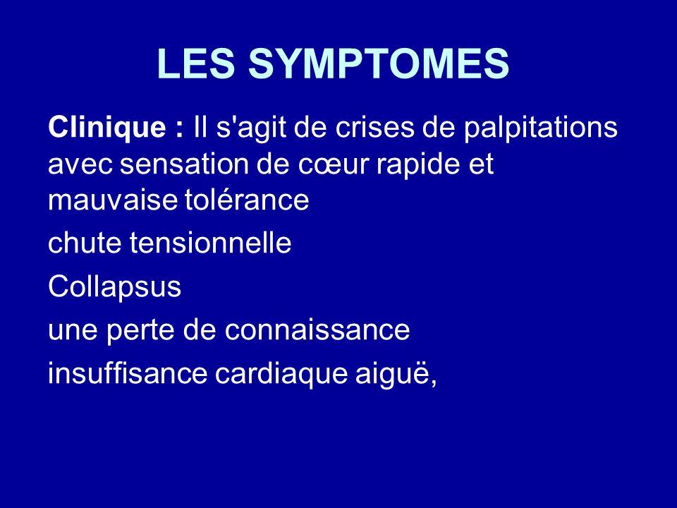 LES SYMPTOMES Clinique : Il s agit de crises de palpitations avec sensation de cœur rapide et mauvaise tolérance.