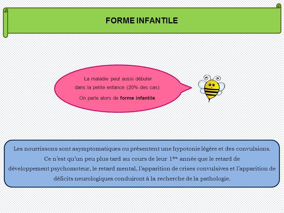 FORME INFANTILE La maladie peut aussi débuter. dans la petite enfance (20% des cas). On parle alors de forme infantile.