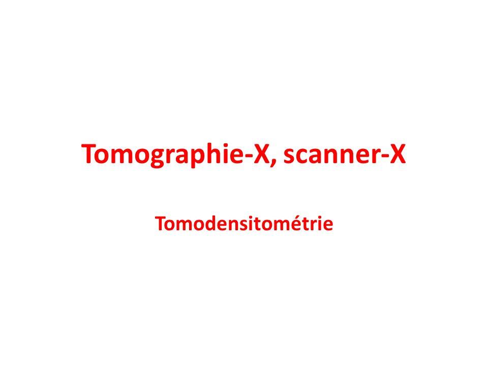 Tomographie-X, scanner-X