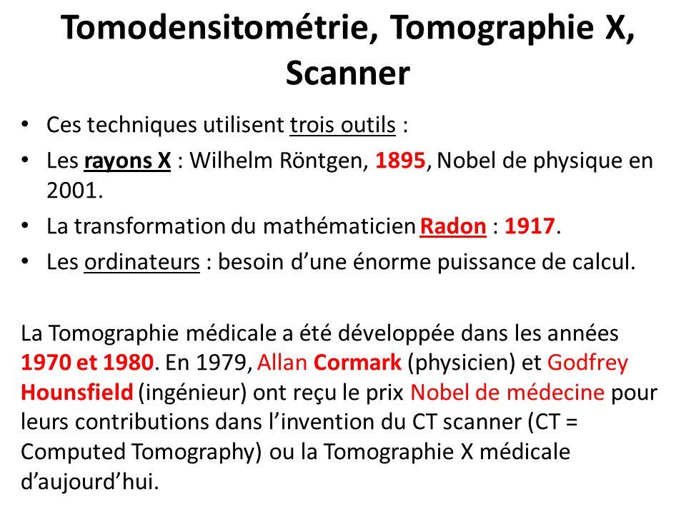 Tomodensitométrie, Tomographie X, Scanner