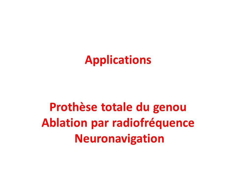 Applications Prothèse totale du genou Ablation par radiofréquence Neuronavigation