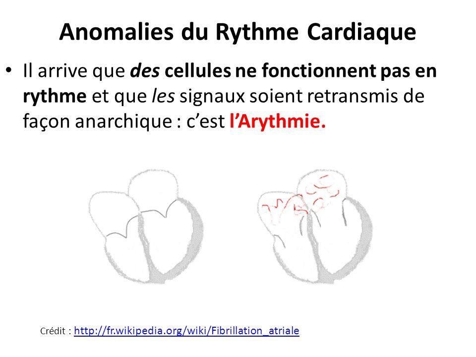 Anomalies du Rythme Cardiaque