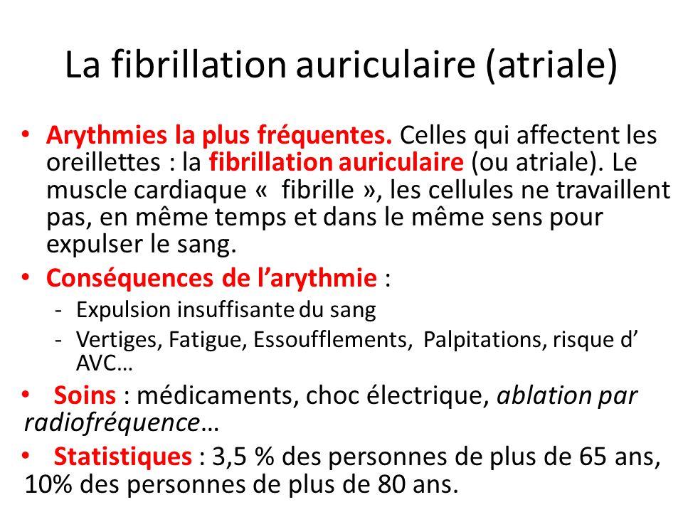 La fibrillation auriculaire (atriale)