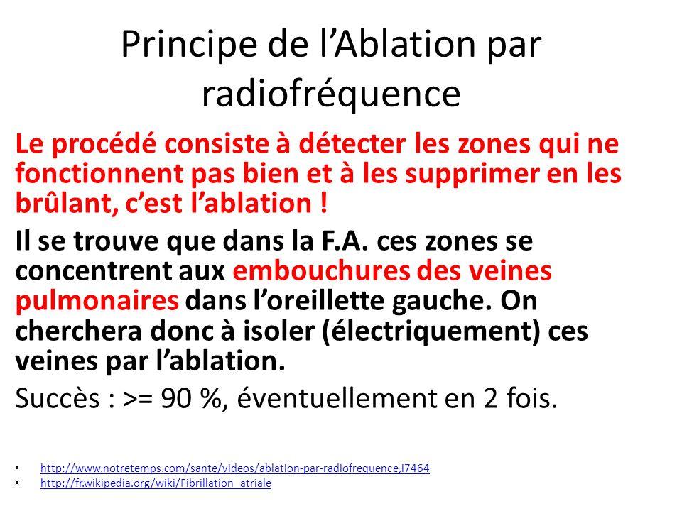 Principe de l'Ablation par radiofréquence