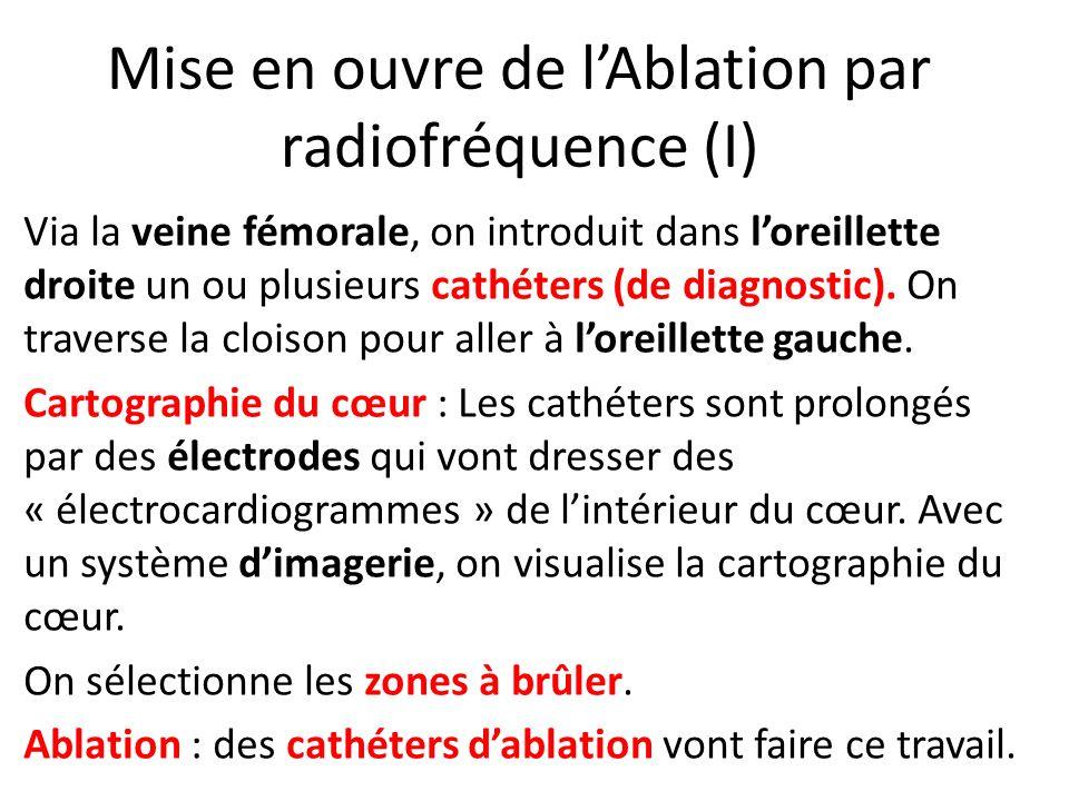 Mise en ouvre de l'Ablation par radiofréquence (I)