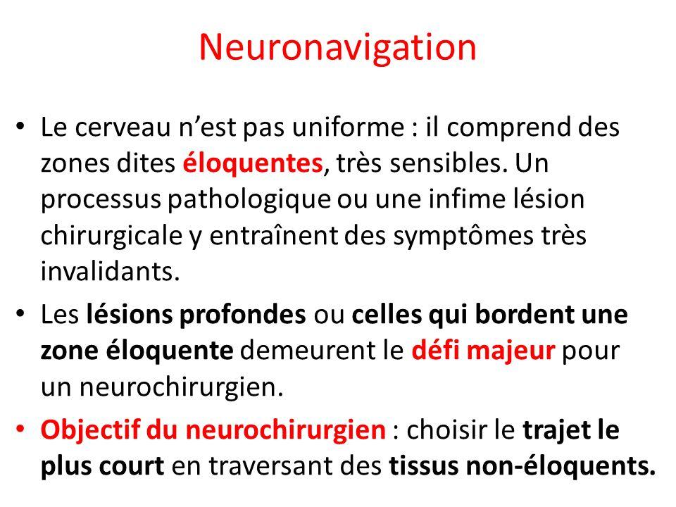 Neuronavigation