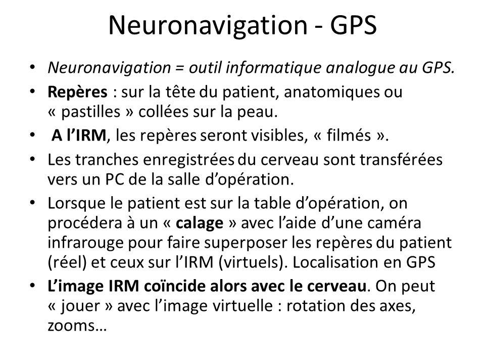 Neuronavigation - GPS Neuronavigation = outil informatique analogue au GPS.