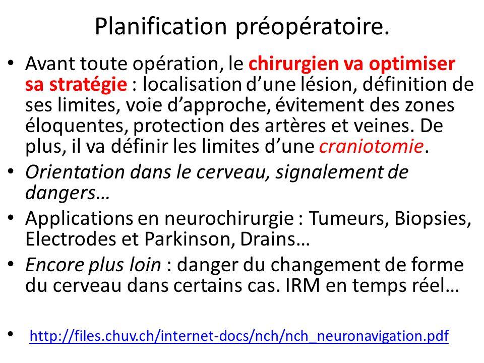 Planification préopératoire.
