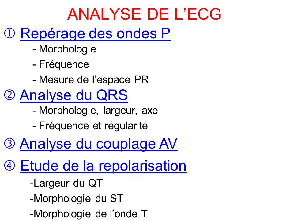 ANALYSE DE L'ECG  Repérage des ondes P  Analyse du QRS