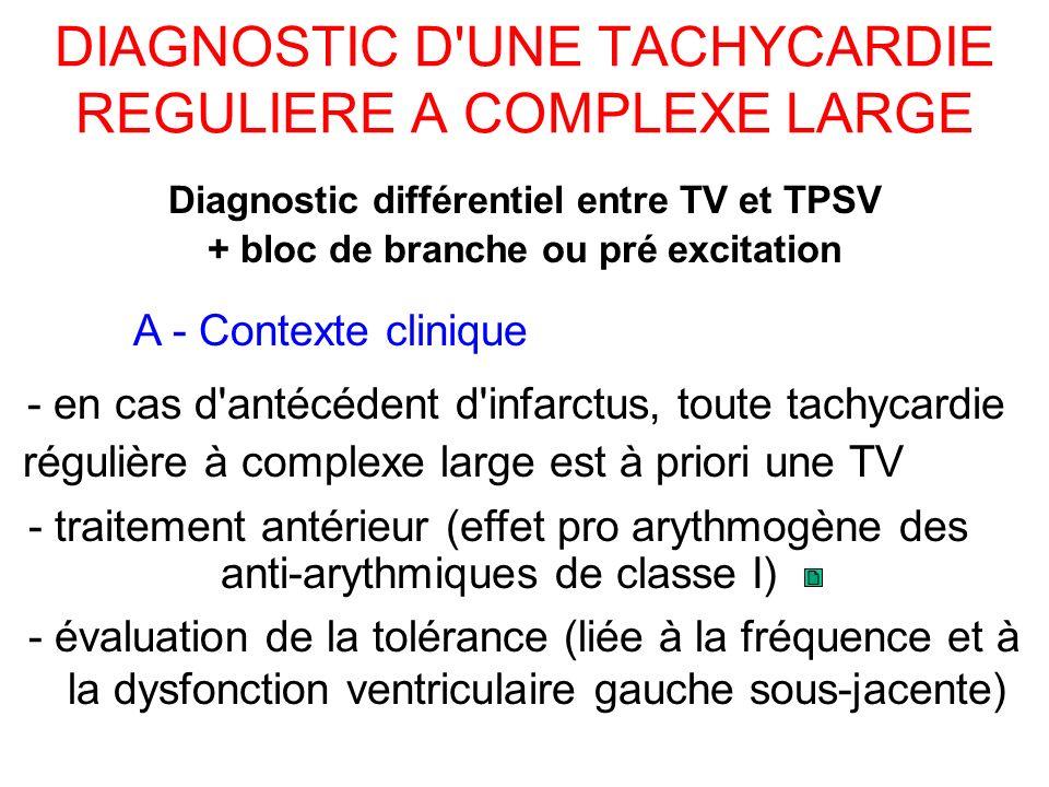 DIAGNOSTIC D UNE TACHYCARDIE REGULIERE A COMPLEXE LARGE