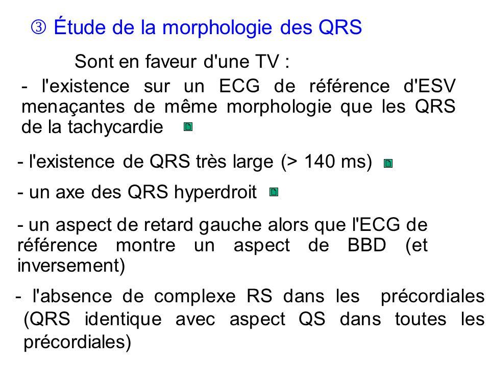  Étude de la morphologie des QRS