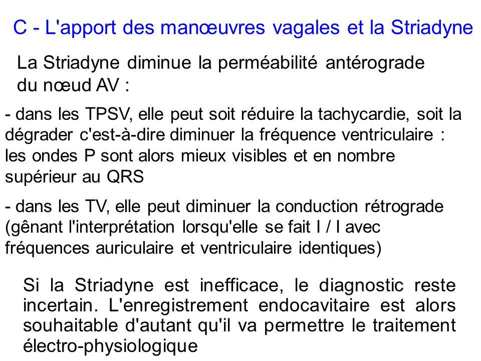 C - L apport des manœuvres vagales et la Striadyne