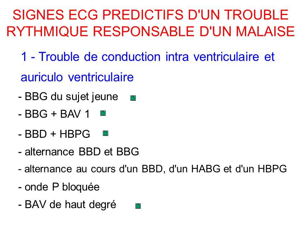SIGNES ECG PREDICTIFS D UN TROUBLE RYTHMIQUE RESPONSABLE D UN MALAISE