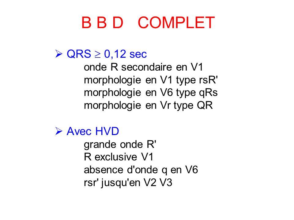 B B D COMPLET  QRS  0,12 sec  Avec HVD onde R secondaire en V1