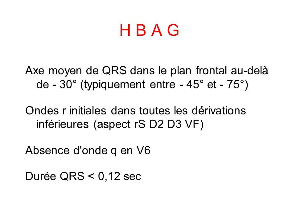 H B A G Axe moyen de QRS dans le plan frontal au-delà de - 30° (typiquement entre - 45° et - 75°)
